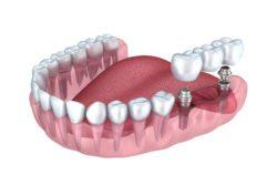 dental implant secured bridge in Manassas Virginia