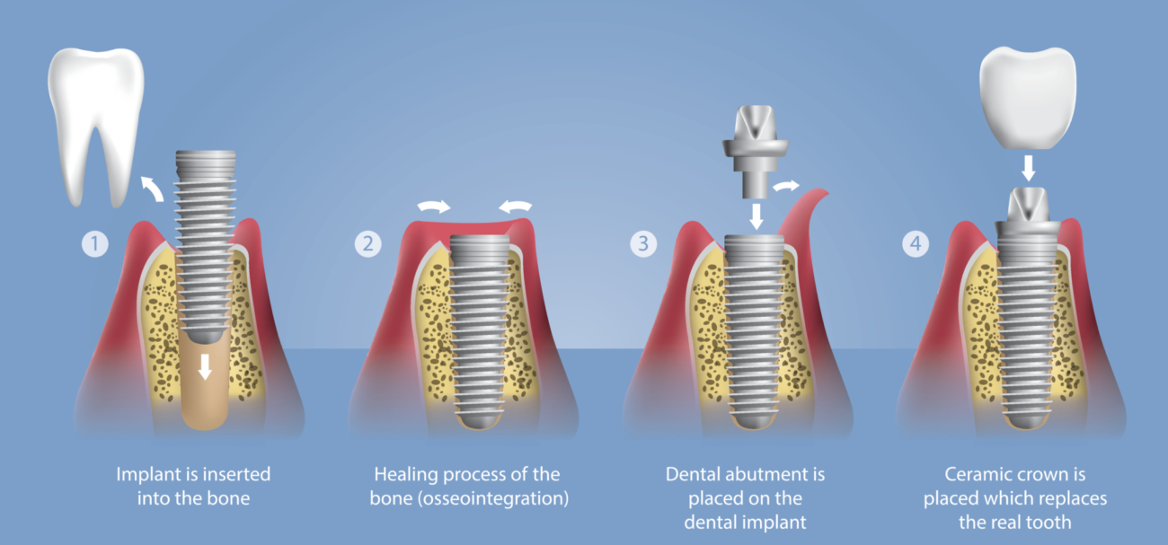 dental implant process diagram manassas va implant dentist office