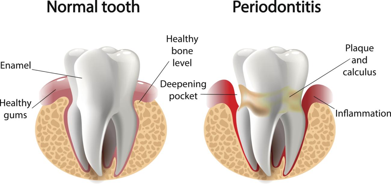 periodontal therapy for gum disease manassas va dentist office