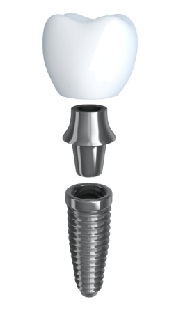 dental implant model manassas smiles implant services
