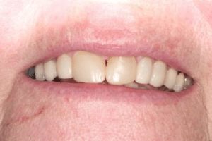 Patient 2 before smile makeover at Manassas Smiles