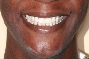 patient 3 after porcelain veneers at Manassas Smiles