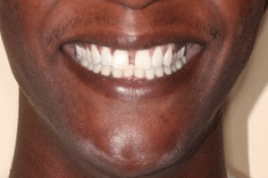 patient 3 before tooth gap treatment at Manassas Smiles