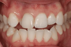 Patient 4 after porcelain veneer procedure