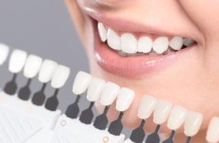 How do I whiten my teeth Manassas Va